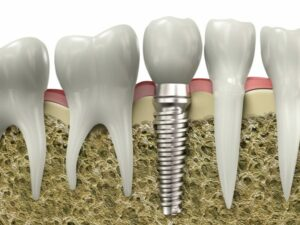 Dental Implants Algonquin, Carpentersville, and Huntley